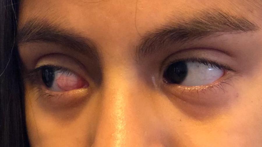 Alumna de la primaria Alfonso Reyes no perdió el ojo