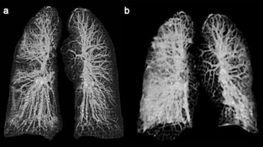 ¡Impactante! Así es como se ven unos pulmones con COVID-19
