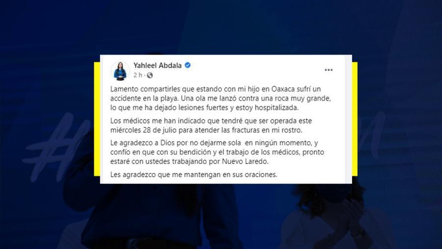 Sufre accidente Yahleel Abdala mientras vacacionaba en Oaxaca