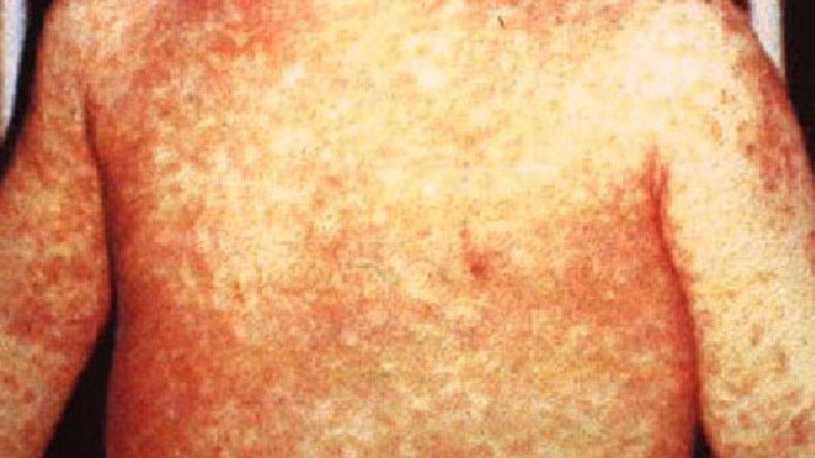 Brownsville alarmada por brote de sarampión