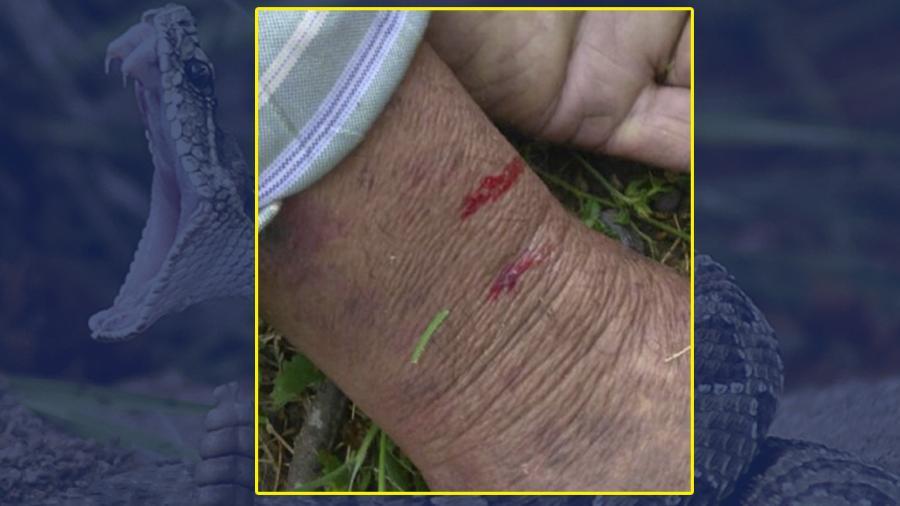Hombre es hallado sin vida por presunta mordida de cascabel