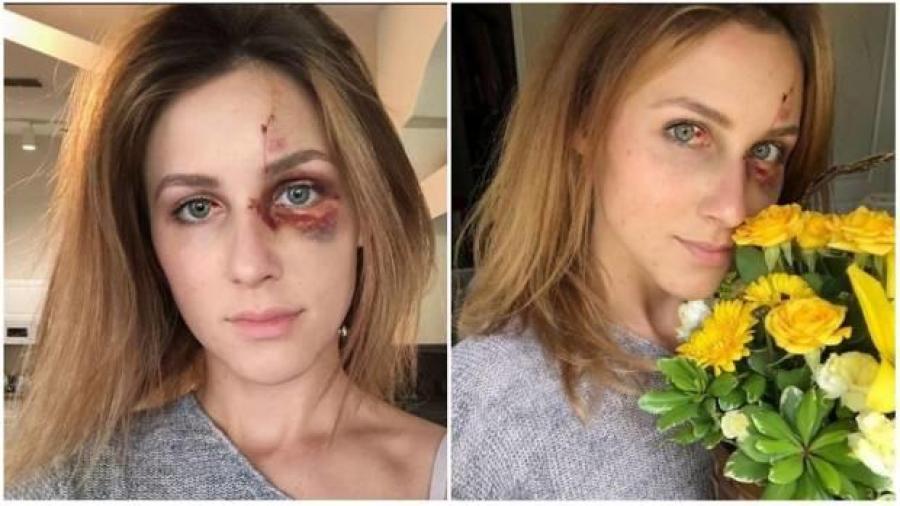 Publica las secuelas de la brutal golpiza que le da su novio
